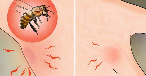Is Bee Venom Useful Against Cancer?