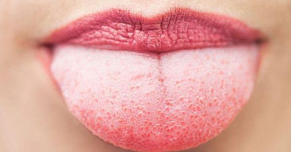 Language Why Whites? White Tongue Symptom Of Which Diseases?