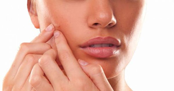 How Do Blackheads Pass? Here are the details;
